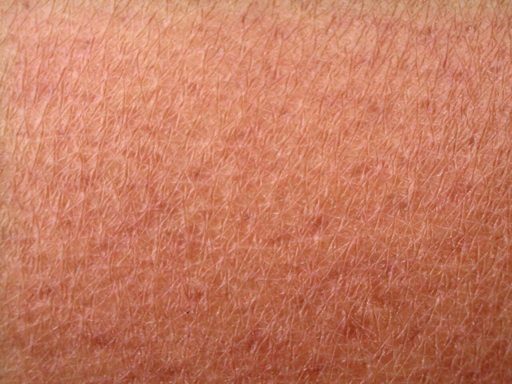 atopowe zapalenie skóry u niemowląt objawy