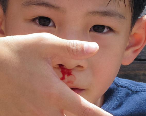 Krwawienia z nosa u dzieci – przyczyny i postępowanie