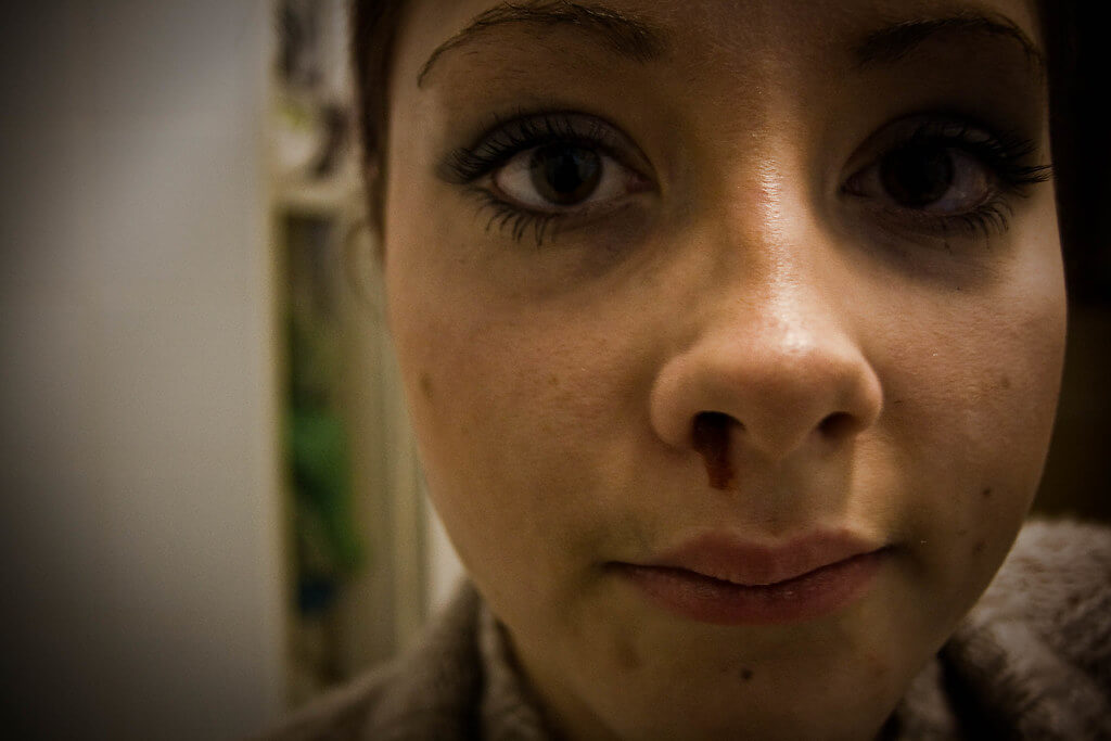 krwotok z nosa brak witaminy