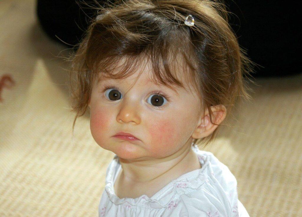 łojotokowe zapalenie skóry u dziecka